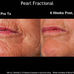 Anti Aging Colorado Springs