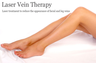 Laser Vein Therapy Colorado